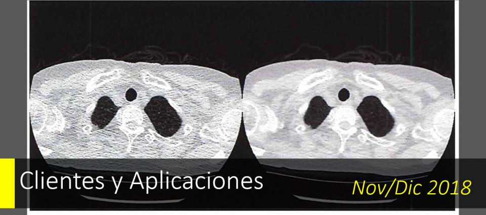 Uso de Deep Learning para reducir el riesgo de exposición a la radiación en la tomografía computarizada.